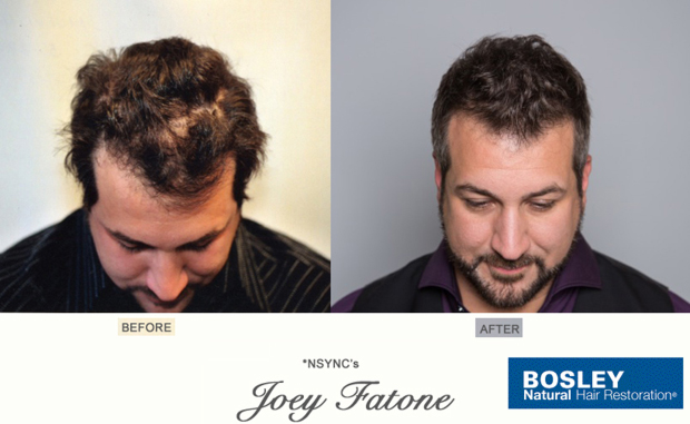 N Sync Joey Fatone Bosley Hair Loss Spokesperson Ad