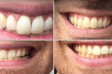 gotobeds-teeth-1000